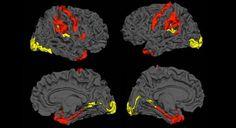 Los cerebros esquizofrénicos tienen la capacidad de regenerarse