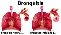 Plantas medicinales para tratar la bronquitis La inflamación de las vías aéreas se denomina bronquitis, y causa tos y problemas respiratorios; la bronquitis aguda puede ser causada por una infección viral o un resfriado, mientras que la bronquitis crónica se produce sobre todo en fumadores o en personas con enfermedades pulmonares a largo plazo, como el enfisema.