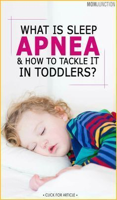 Stop Snoring Remedies-Tips - What Is Sleep Apnea And How To Tackle It In Toddlers? - The Easy, 3 Minutes Exercises That Completely Cured My Horrendous Snoring And Sleep Apnea And Have Since Helped Thousands Of People – The Very First Night! What Causes Sleep Apnea, Cure For Sleep Apnea, Sleep Apnea Treatment, Sleep Apnea Remedies, Insomnia Causes, Insomnia Remedies, Sleep Apnea In Children, Insomnia In Children, Teachers