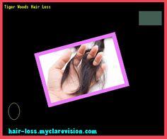 Tiger Woods Hair Loss 173257 - Hair Loss Cure!