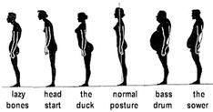 Sway Back Posture: A Common Postural Variation