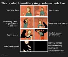 #HereditaryAngioedema #ChronicIllness