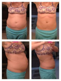 Holy moly! Love her results! Ultimate Body Applicator. Try one. You will fall in love! http::/wrapsbycarly.myitworks.com
