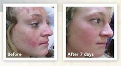 Uneven Skin Tone, Independent Consultant, Stretch Marks, Forever Young, Health And Beauty, Teeth, Beauty Products, Oil, Cosmetics