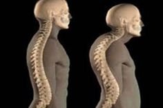 Osteoporosis is a disease that affects the bones in the human body. In this case, the bones lose density and there are greater chances of fracture and other Osteoporosis Diet, Prostate Cancer Treatment, Scoliosis Exercises, Aerobic Exercises, Low Estrogen, Perfect Posture, Bad Posture, Bone Health, Coconut Oil