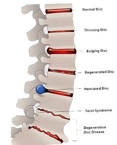 Get all information on Disc Disorders - Ruptured Disc, Thinning Disc, Bulging Disc and Degenerative Disc Disease at University Spine Center. We are specialized in diagnosis of disc disorders. Human Body Anatomy, Human Anatomy And Physiology, Muscle Anatomy, Medical Surgical Nursing, Degenerative Disc Disease, Nursing School Notes, Spine Health, Medical Anatomy, Medical Illustration