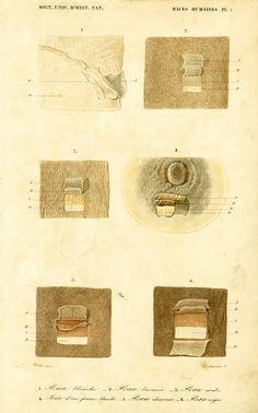 1861 Peaux Races Humaines Anatomie Gravure Ch. par sofrenchvintage