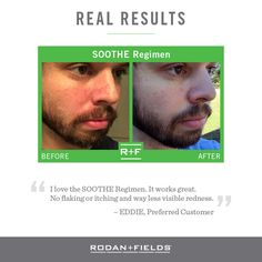 Experiencing redness, itchiness.... try the SOOTHE regimen from Rodan + Fields for 60 days (money back guarantee if you don't LOVE the results)!  Message me for more information - I'd love to help you!  https://aarackal.myrandf.com