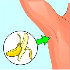 How to Remove Annoying Papillomas and Warts Once For All Health And Nutrition, Health And Wellness, Health Tips, Health Fitness, Herbal Remedies, Home Remedies, How To Know, How To Make, Dieta Detox