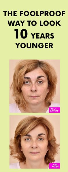 The Foolproof Way to Look 10 Years Younger