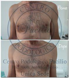 Centro Podologico Pacilio del Prof. Dott. Antonio Pacilio Anton