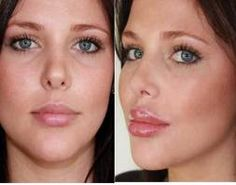 What Is The Best Lip Plumper To Use - Visit http://www.pricecanvas.com/health/lip-plumper/ For Lip Plumper.