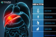 Hepatitis A: Symptoms come on around two to six weeks after you've been infected with the virus. These symptoms come on quickly and last for around five to seven days. You may then start to develop a different set of symptoms. #PrimaMedHospital
