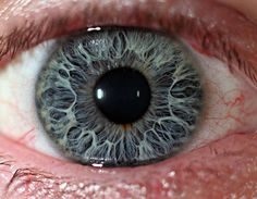 Red Iris Eye - Doctor insights on HealthTap
