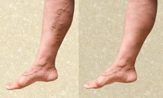 Some simple home remedies for Varicose Veins.
