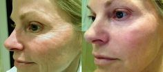 REAL results with NeriumAD! 30-day $$ back guarantee! Www.californiabeautiful.nerium.com or www.Facebook.com/calinerium