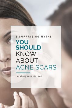 There is a lot of information floating around about acne scars & Spots. Here is a list of 7 surprising myths about acne scars that you should know.