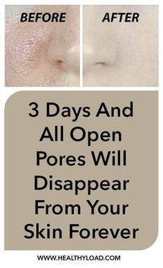 Pores are small openings on the skin which allow it to breathe. They are almost impossible to be seen with the naked eye but may grow in size as we get older. Enlarged pores look really unpleasant and can ruin your appearance, which is why everyone wants to resolve the problem as soon as they …