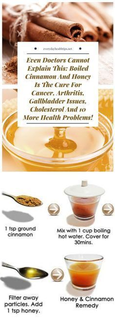 Even Doctors Cannot Explain This: Boiled Cinnamon And Honey Is The Cure For Cancer, Arthritis, Gallbladder Issues, Cholesterol And 10 More Health Problems!