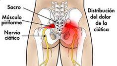 ¿Sufres de ciática? Utiliza cualquiera de estos 3 remedios y combátela…