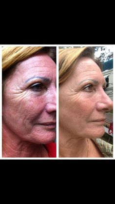 Nerium before and after! For more info or to order with a 30 day money back guarantee go to www.sschoene.nerium.com