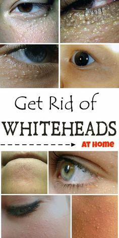 How to get rid of whiteheads on face Whiteheads a common problem for you? See what you have to do to get rid of them! Pimples On Chin, Pimples On Forehead, Pimples Under The Skin, Chin Acne Treatment, Chin Acne Causes, Pimples Remedies, Skin Care Tips, Tattoos, Health