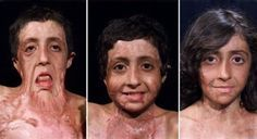 burn-victim-gets-amazing-facial-reconstruction-64450.jpg 700×381 pixels