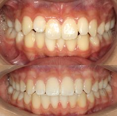 Actual patient of Impressions orthodontics, treated with Invisalign