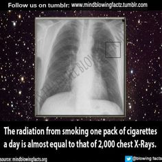 And these patients come in complaining about the amount of radiation they get from a hand xray...smh!