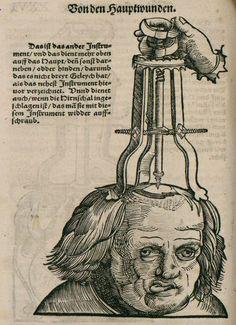 Hans von Gersdorff,  (1551) Feldtbuch der Wundt Artzney (Book of Remedies for Wounds).