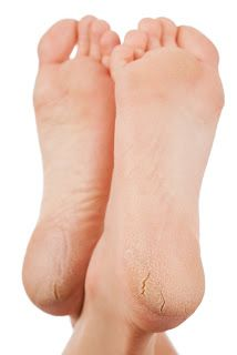 Online bee: DIY Remedy for Cracked Heels And Dry Feet