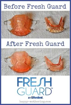 How I Got My Retainers Clean After Years of Neglect Natural Health Remedies, Herbal Remedies, How To Clean Retainers, Braces Retainer, Brace Face, Heal Cavities, How Do You Clean, Oil Pulling, Laundry Tips