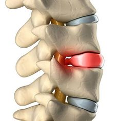 Herniated disc- Symptoms and Non-Surgical Treatments Decompression Therapy, Spinal Decompression, Sciatic Nerve, Nerve Pain, Buldging Disc, Sternocleidomastoid Muscle, Physical Therapy Exercises, Jaw Pain, Muscle Spasms