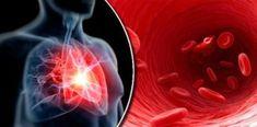 80% ataków serca można by uniknąć, gdyby wszyscy stosowali 5 łatwych zasad Anime, Sport, House, Deporte, Home, Sports, Cartoon Movies, Anime Music, Animation