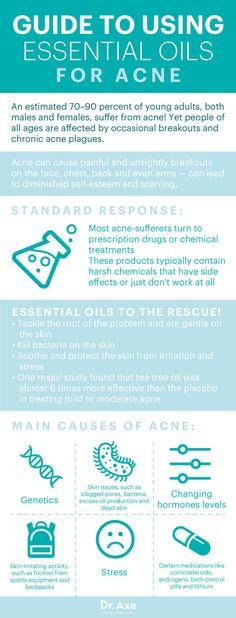 Guide to using essential oils for acne  Hello-Essentials.com/CWINJUM  Facebook.com/VitalityDispensary