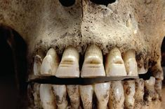 The Vikings filed decorative grooves into their teeth to scare their enemies  http://www.mirror.co.uk/news/uk-news/truth-vikings-not-smelly-barbarians-3183358