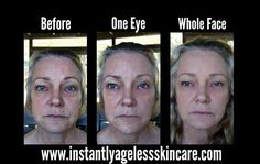 Dramatic results!! Order yours here...
