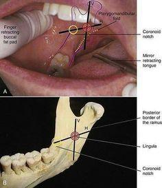 Oct 2019 - Aloof Dental Care Benefits Of Dental Assistant Study, Dental Hygiene Student, Dental Hygienist, Dental World, Dental Life, Dental Health, Anatomy Head, Dentistry Education, Dental Images
