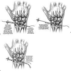Four corner fusion, or partial wrist arthrodesis, is a