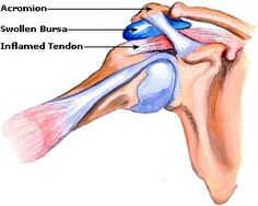 Treatment for Bursitis, Symptoms, Relief