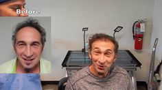 What Does a Hair Transplant Cost in Miami FL | Hair Clinics Near Miami FL youtu.be/ijKzKCgC2GE