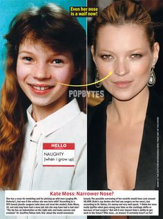 Did Kate Moss Had Nose Job Plastic Surgery Or Not. What Happen to Kate Moss Nose? Kate Moss Rhinoplasty Surgery with Then and Now photos has been discussed Celebrities Before And After, Celebrities Then And Now, Female Celebrities, Marilyn Monroe Plastic Surgery, Plastic Surgery Pictures, Brow Lift, Celebrity Plastic Surgery, No Photoshop, Cosmetic Dentistry