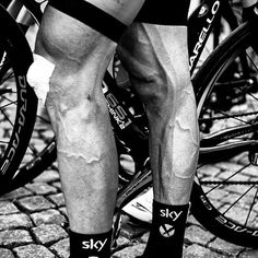 Working legs......just crazy really.