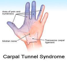 Knee Pain: Numb Thumb