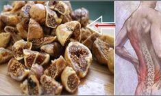 Permanently Remove The Pain In The Spine, Back And Legs With This Homemade Natural Solution – Natural Remedies Leg Pain, Back Pain, Spine Pain, Headache Remedies, Eating Raw, Natural Solutions, Learn To Cook, Natural Remedies, Healthy Life