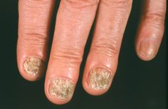 Nail fungus - symptoms, causes and risk factors