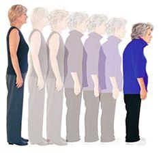 Op het eerste gezicht lijkt osteoporose een typische ouderdomsziekte maar dat is niet altijd het geval. Osteoporose is ook een risicofactor bij vrouwen in de menopauze.Op dit moment wijzen de onderzoeken uit dat boven de leeftijd van 55 jaar één op de drie vrouwen en één op de acht mannen osteoporose krijgt.  http://www.matestrainingen.nl/trainingen/zorg-en-welzijn/osteoporose