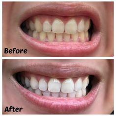 Image result for before and after teeth