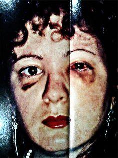 Nan Goldin - Self Portrait. Domestic abuse documentary style. Inspiration.