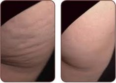 How I got rid of cellulite :) apologies for the close up lol watch the video for the tips!